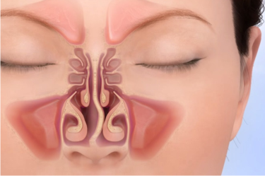 Septoplasty Surgery in India, Best ENT Centre for Septoplasty Surgery in India, Nose Bone Correction Surgery, Surgery for Cough and Cold in India
